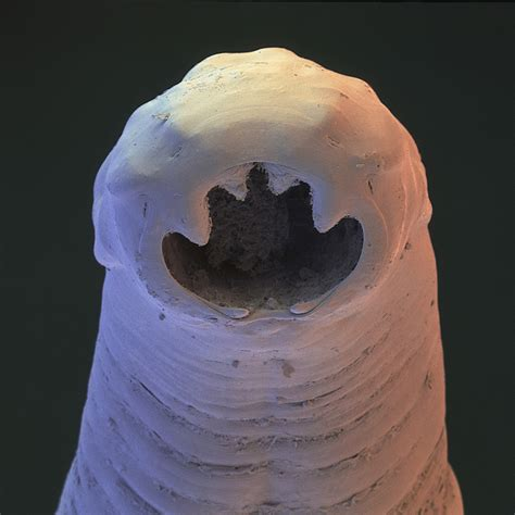 Parasitic worm secretions could treat asthma and allergies