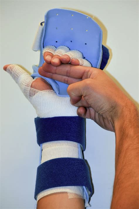 Primary Flexor Tendon Repair in Zones 1 and 2: Early
