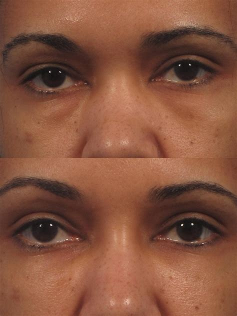 Cannula filling of the tear trough under eye filler NYC